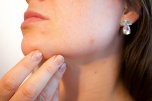 Poradnia dermatologiczna